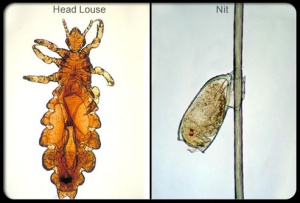 head_lice_s2_louse_and_nitr